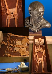 The museum collection contains a skeleton from the Waltham Abbey Chapter House burial of around 1250 AD. Evidence suggest the man is thought to be an abbot of Waltham, a facial reconstruction has been completed, showing what the abbot may have looked like.